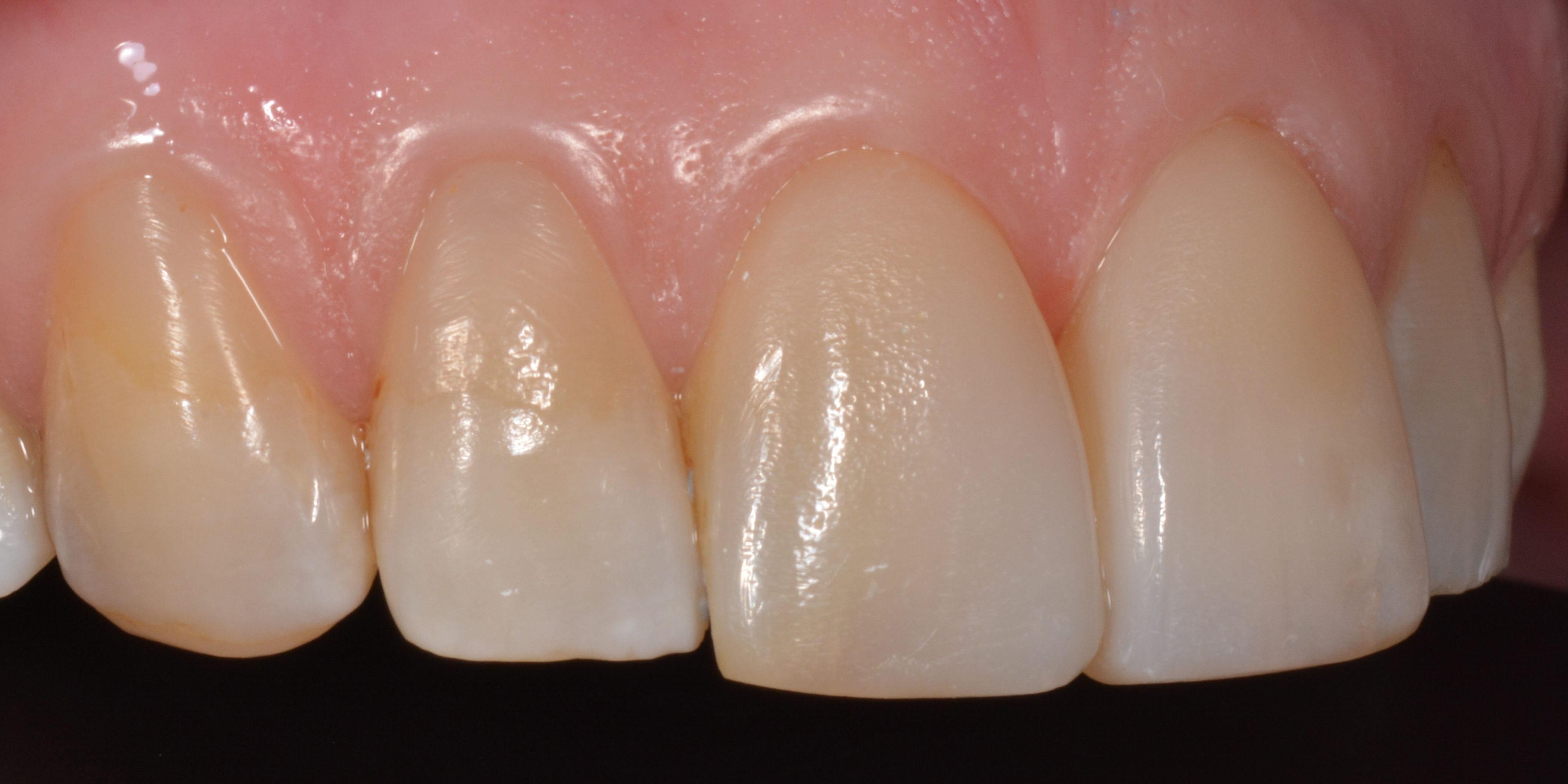 facings tandarts haarlem
